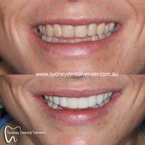 We are the best dentistry in Sydney.