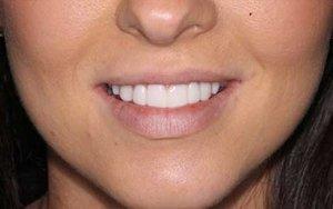 Sydney Dental Veneer