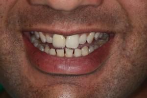 Sydney-Dental-Veneer