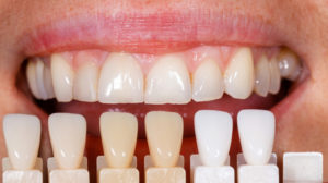 We are the best dentistry for porcelain veneers.