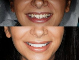 What an awesome smile transformation!