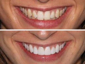 Pretty smile transformation by our client.