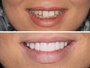 Amazing smile transformation from our client.