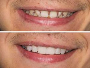 A dramatic before and after photo with dental veneers