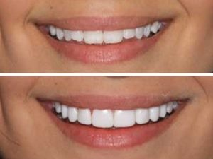 Nice set of teeth made possible by our dentist.