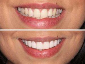 Before and after look of dental veneers.