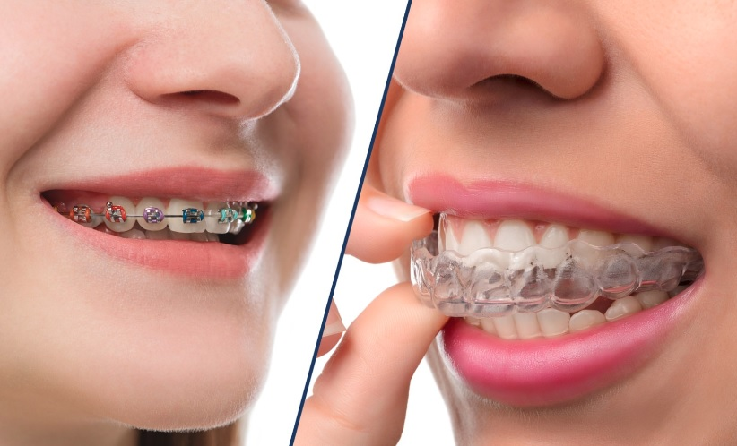 Braces Cost in Sydney