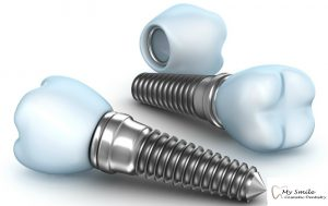 Dental Implant in Sydney