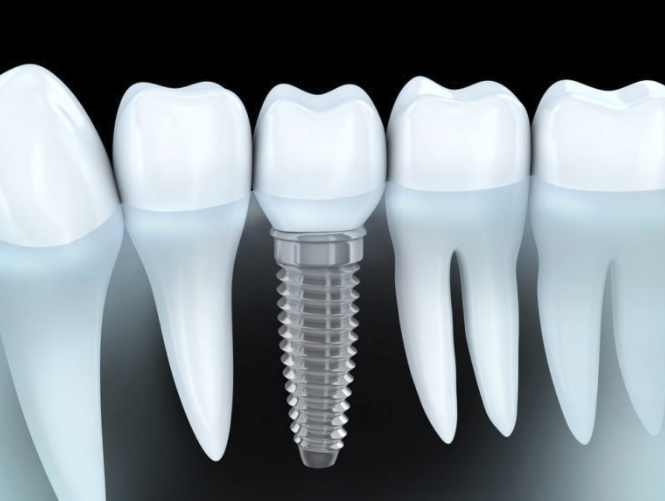 Sydney's Dental Implants
