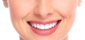 Dental Veneers in Sydney