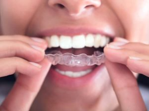 We are a Platinum Provide of Invisalign in Sydney