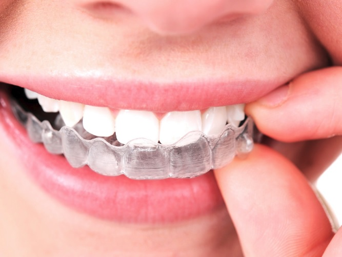 Invisalign price in Sydney