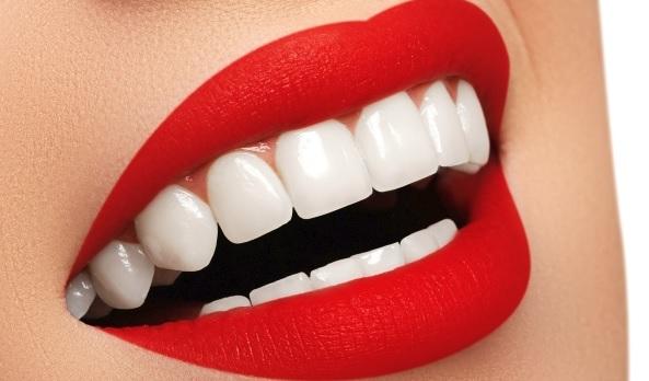 Professional Teeth Whitening in Sydney