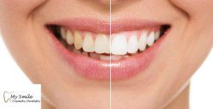 Teeth Whitening in Sydney
