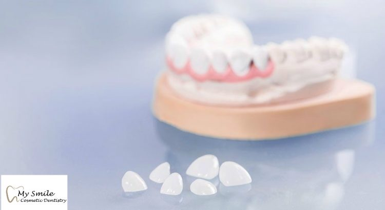 Teeth veneers in Sydney