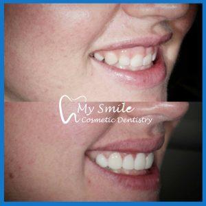Best dentist for dental veneers in Sydney