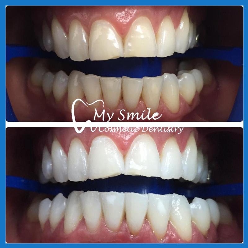 High quality teeth whitening in Sydney