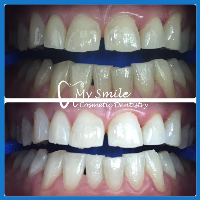 Best teeth whitening in Sydney