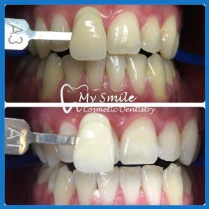 Best dentistry for teeth whitening in Sydney
