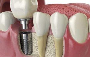 Best dental implants in Sydney