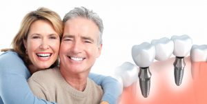 Dental Implants in Sydney
