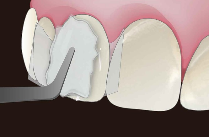 Veneer teeth in Sydney
