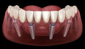 Full mouth dental implants in Sydney