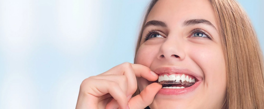 Average Cost of Invisalign in Sydney
